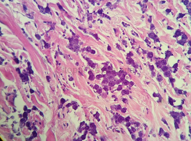 Nuevo panel Mastocitoma
